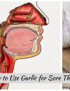12 Ways To Use Garlic To Soothe Sore Throat