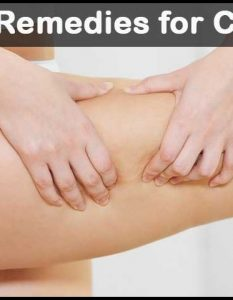 13 DIY Home Remedies for Cellulite