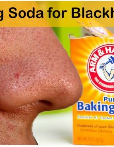 Baking Soda Remedies for Blackheads