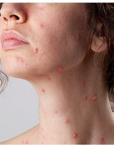 Home Remedies For Chickenpox 21 Methods