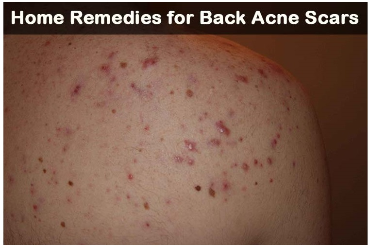 Acne scars and dating