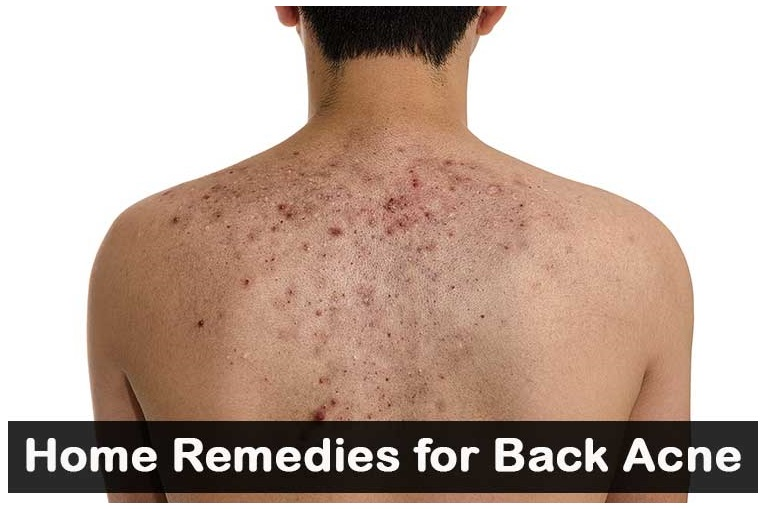 Back Acne Treatment Home Remedies Homeremedies 2u