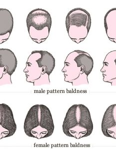 Home Remedies for Baldness Cure14 Methods