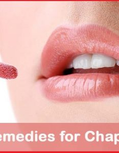 Home Remedies for Chapped Lips - 10 Methods