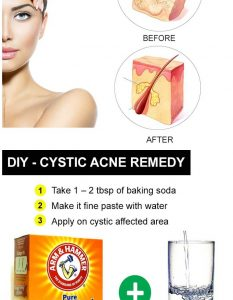 Home Remedies for Cystic Acne - 25 DIY Methods