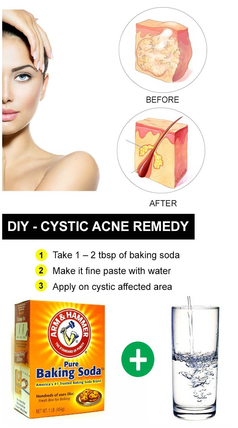 Home Remedies for Cystic Acne - 25 DIY Methods - Home Remedies 2 u