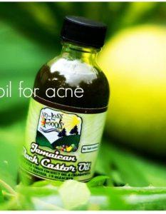 How Do I Use Castor Oil for Acne?