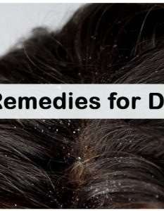 How To Get Rid Of Dandruff - Naturally