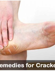 How To Heal Cracked Heels 19 Natural Ways