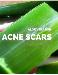 How To Use Aloe Vera For Acne Scars 9 Quick Methods