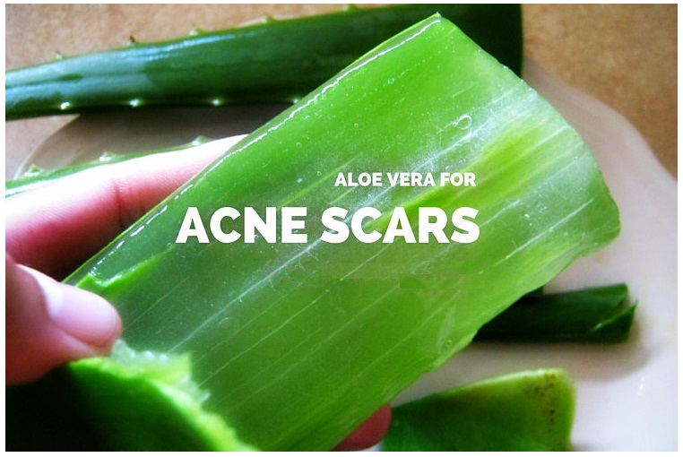 how to clear acne scars quick