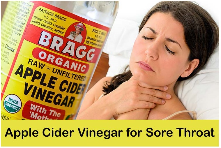 How To Stop A Sore Throat  Natural Home Remedies