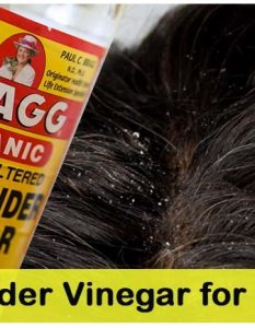 How To Use Apple Cider Vinegar To Cure Dandruff 21 Ways