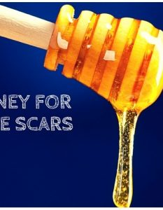 How To Use Honey for Acne Scars (19 Methods )