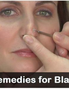 How to Get Rid Of Blackheads - 14 Methods