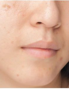 How to Get Rid of Chickenpox Scars quickly 15 WAYS