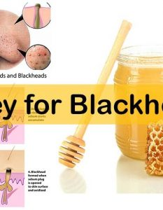 How to Remove Blackheads with Honey