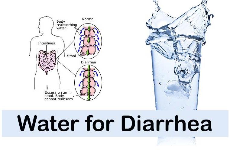 Headache And Loose Stools Treatment For Diarrhea Natural