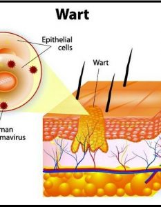 Home Remedies For Wart Scars