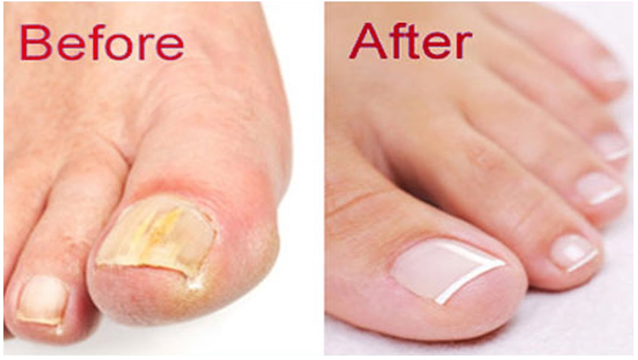 Home Remedies for Nail Fungus - Home Remedies 2 u